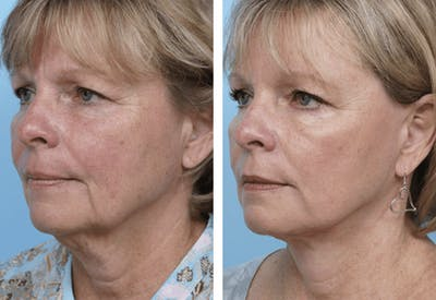 Dr. Balikian's Facelift Gallery - Patient 2167391 - Image 2