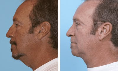 Dr. Balikian's Facelift Gallery - Patient 2167393 - Image 1
