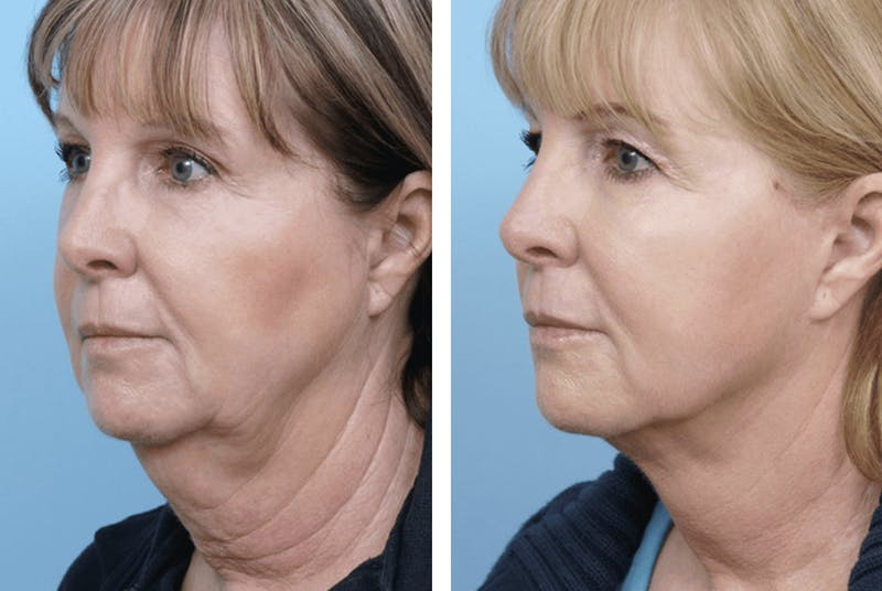 Dr. Balikian's Facelift Gallery - Patient 2167403 - Image 1