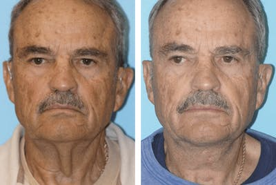 Dr. Balikian's Facelift Gallery - Patient 2167407 - Image 1