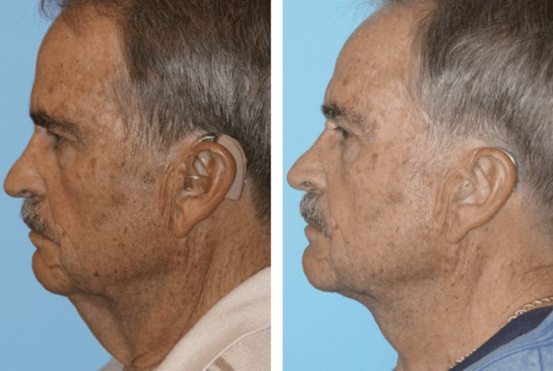 Dr. Balikian's Facelift Gallery - Patient 2167407 - Image 2