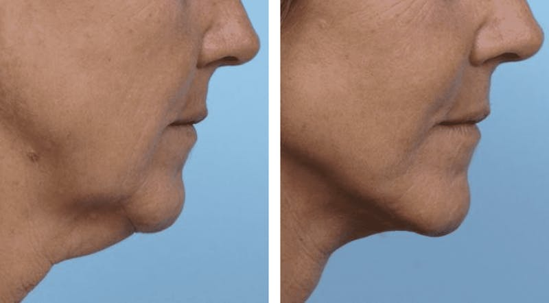 Dr. Balikian's Facelift Gallery - Patient 2167411 - Image 1