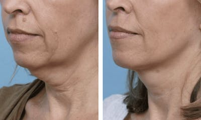 Dr. Balikian's Facelift Gallery - Patient 2167414 - Image 1