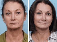 Dr. Balikian's Facelift Gallery - Patient 2167418 - Image 1