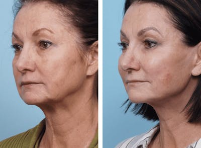 Dr. Balikian's Facelift Gallery - Patient 2167418 - Image 2