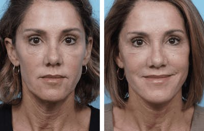 Dr. Balikian's Facelift Gallery - Patient 2167421 - Image 1
