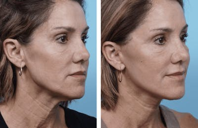 Dr. Balikian's Facelift Gallery - Patient 2167421 - Image 2