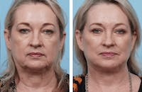 Dr. Balikian's Facelift Gallery - Patient 2167423 - Image 1