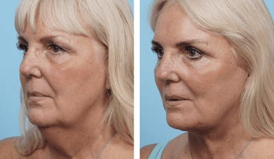 Dr. Balikian's Facelift Gallery - Patient 2167425 - Image 1