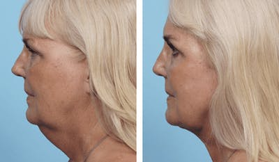 Dr. Balikian's Facelift Gallery - Patient 2167425 - Image 2