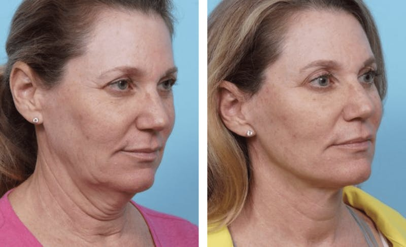 Dr. Balikian's Facelift Gallery - Patient 2167427 - Image 1