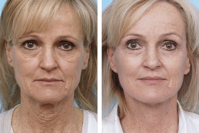 Dr. Balikian's Facelift Gallery - Patient 2167432 - Image 1