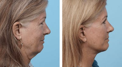 Dr. Balikian's Facelift Gallery - Patient 2167434 - Image 1