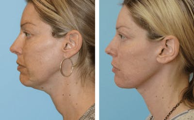 Dr. Balikian's Facelift Gallery - Patient 2167436 - Image 1