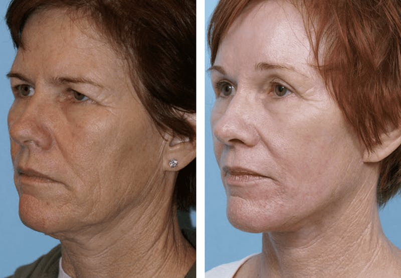 Dr. Balikian's Facelift Gallery - Patient 2167438 - Image 1