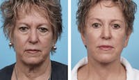 Dr. Balikian's Facelift Gallery - Patient 2167440 - Image 1