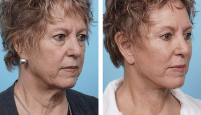Dr. Balikian's Facelift Gallery - Patient 2167440 - Image 2