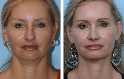 Dr. Balikian's Facelift Gallery - Patient 2167442 - Image 1