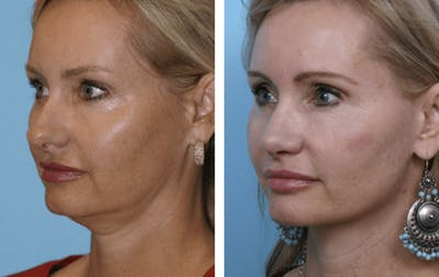 Dr. Balikian's Facelift Gallery - Patient 2167442 - Image 2