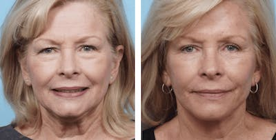 Dr. Balikian's Facelift Gallery - Patient 2167446 - Image 1