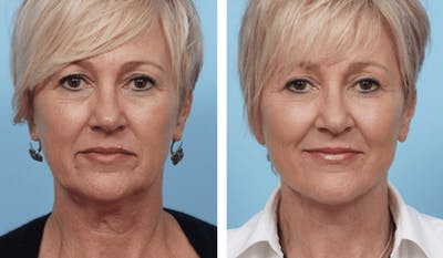 Dr. Balikian's Facelift Gallery - Patient 2167449 - Image 1