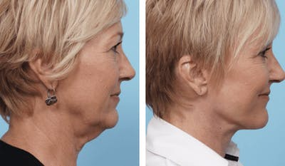 Dr. Balikian's Facelift Gallery - Patient 2167449 - Image 2