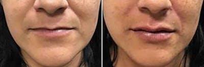 Dr. Balikian's Lip Augmentation Gallery - Patient 2167459 - Image 1