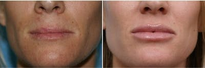 Dr. Balikian's Lip Augmentation Gallery - Patient 2167461 - Image 1