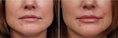 Dr. Balikian's Lip Augmentation Gallery - Patient 2167474 - Image 1