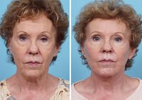 Dr. Balikian's Laser / Chemical Peel Gallery - Patient 2167478 - Image 1