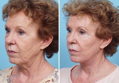 Dr. Balikian's Laser / Chemical Peel Gallery - Patient 2167478 - Image 2