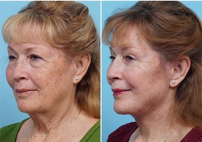 Dr. Balikian's Laser / Chemical Peel Gallery - Patient 2167479 - Image 1