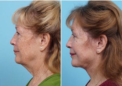 Dr. Balikian's Laser / Chemical Peel Gallery - Patient 2167479 - Image 2