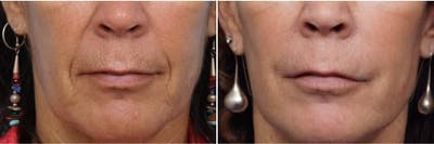 Dr. Balikian's Laser / Chemical Peel Gallery - Patient 2167482 - Image 1
