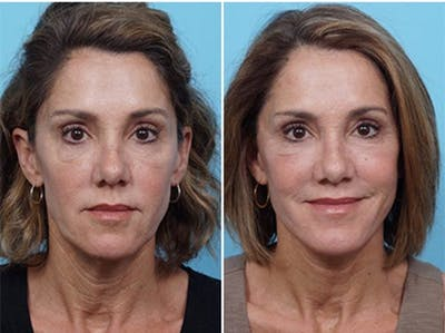 Dr. Balikian's Laser / Chemical Peel Gallery - Patient 2167484 - Image 1