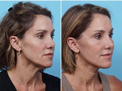 Dr. Balikian's Laser / Chemical Peel Gallery - Patient 2167484 - Image 2