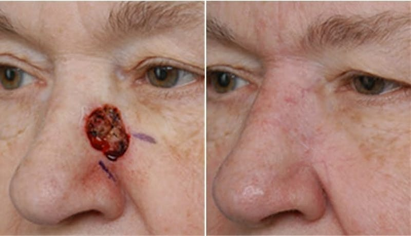 Dr. Balikian's Reconstruction / Scar Revision Gallery - Patient 2167486 - Image 1