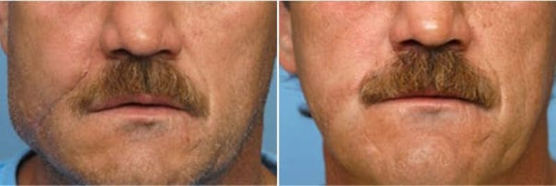 Dr. Balikian's Reconstruction / Scar Revision Gallery - Patient 2167490 - Image 1
