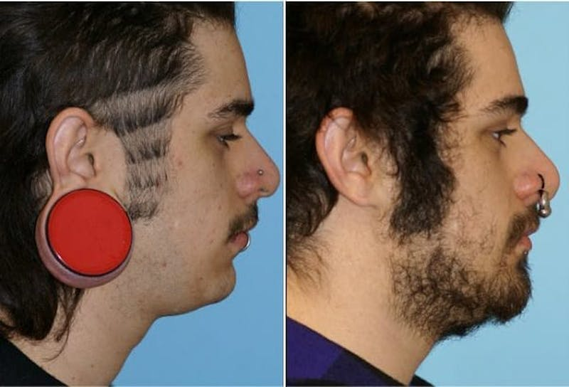 Dr. Balikian's Reconstruction / Scar Revision Gallery - Patient 2167494 - Image 1
