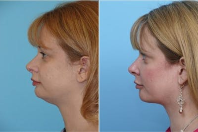 Dr. Balikian's Liposuction Gallery - Patient 2167497 - Image 1