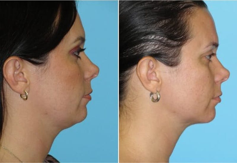 Dr. Balikian's Liposuction Gallery - Patient 2167499 - Image 1