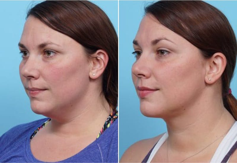Dr. Balikian's Liposuction Gallery - Patient 2167501 - Image 1