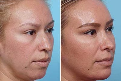 Dr. Balikian's Liposuction Gallery - Patient 2167503 - Image 1
