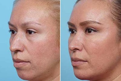 Dr. Balikian's Liposuction Gallery - Patient 2167503 - Image 2