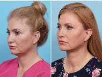 Dr. Balikian's Liposuction Gallery - Patient 2167505 - Image 1