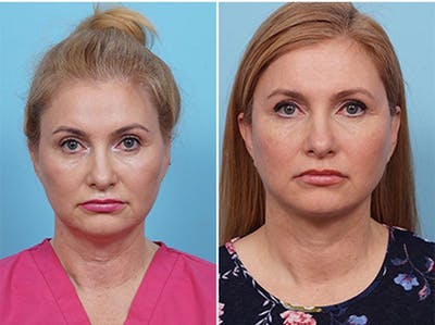 Dr. Balikian's Liposuction Gallery - Patient 2167505 - Image 2