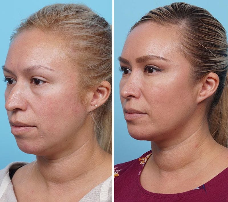 Dr. Balikian's Chin Implant Gallery - Patient 2167512 - Image 1