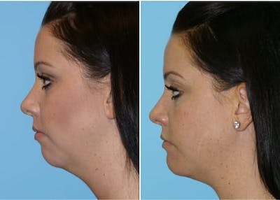 Dr. Balikian's Chin Implant Gallery - Patient 2167514 - Image 1