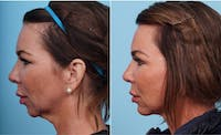 Dr. Balikian's Chin Implant Gallery - Patient 2167516 - Image 1