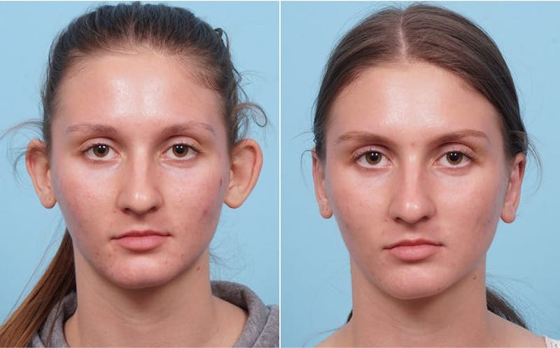 Dr. Balikian's Otoplasty Gallery - Patient 2167518 - Image 1